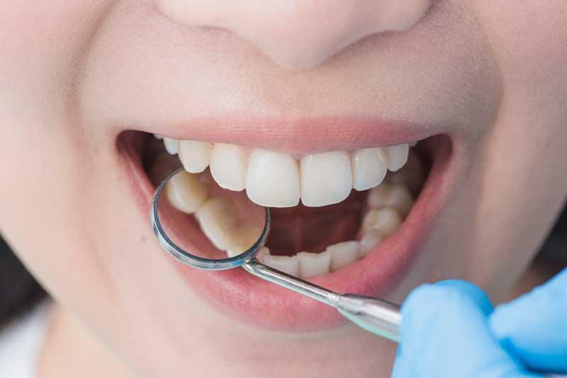סוגים-שונים-של-רשלנות-בטיפולי-שיניים