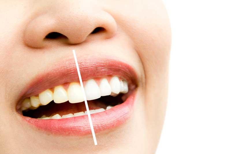 רשלנות בטיפול של הלבנת שיניים