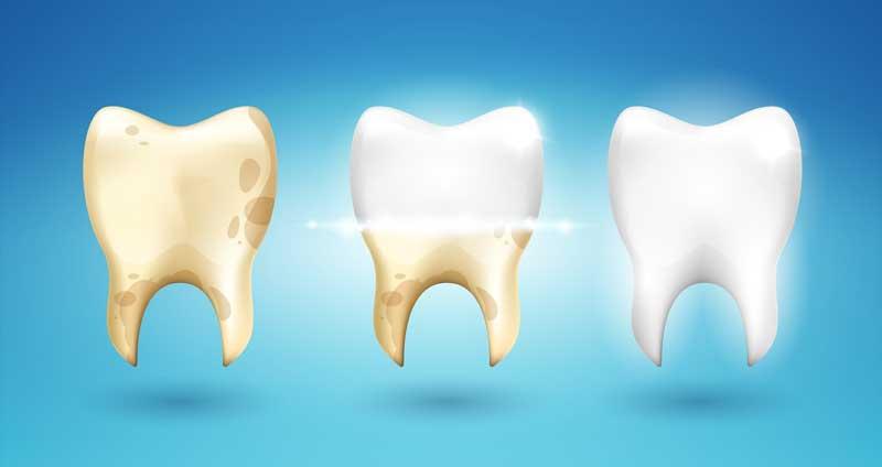 שינוי בצבע השיניים כתוצאה מרשלנות רפואית