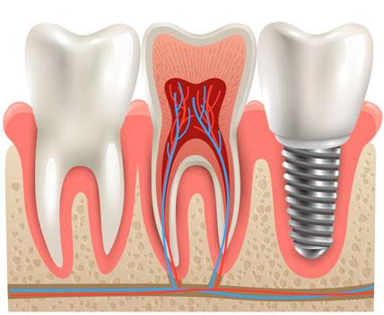 השתלת שיניים רשלנות – עילות התביעה